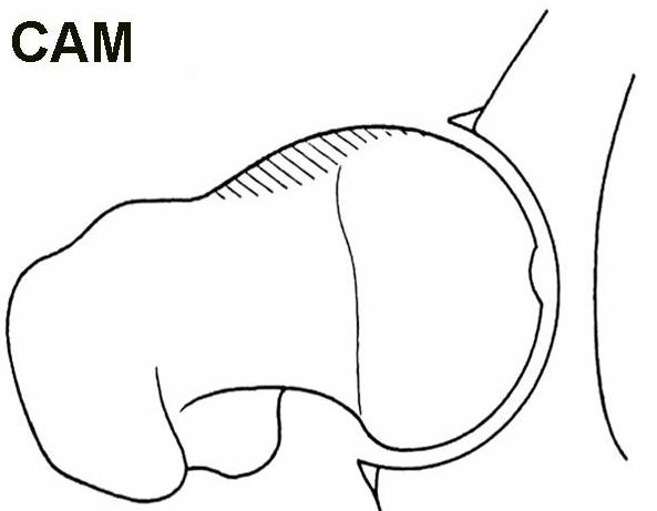 Cam Hip Diagram