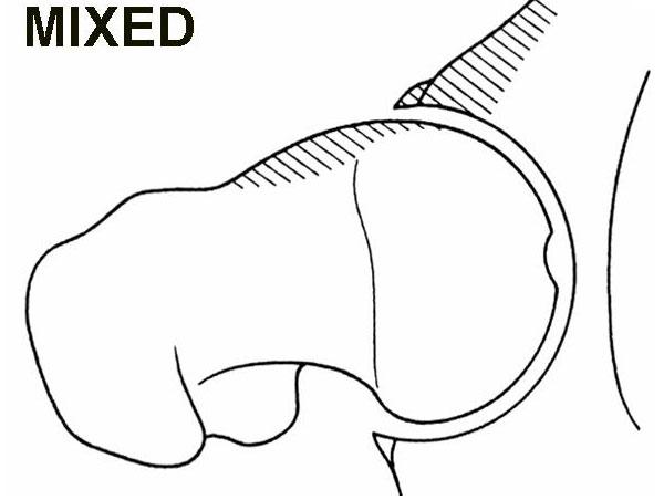 Mixed Cam & Pincer Lesion diagram